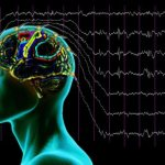 ЭЭГ при эпилепсии: расшифровка результатов. Признаки эпилепсии на ЭЭГ