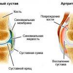 Коленный сустав в норме и при артрите