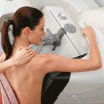 Маммография или УЗИ молочных желез – что лучше?