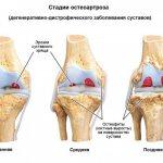 МРТ плечевого сустава как проводят и что можно обнаружить