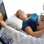 Необходимость прохождения УЗДГ во время беременности