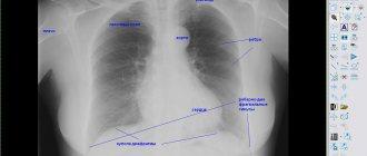 Органы на рентгене