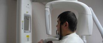 панорамная рентгенография