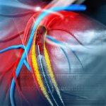 Проверка здоровья сердца через анализ крови