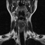 Снимок МРТ мягких тканей шейного отдела
