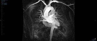 Снимок МРТ сердца и сосудов с контрастированием